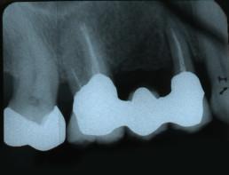 Abb. 1: Ausgangsituation Zahnfilm