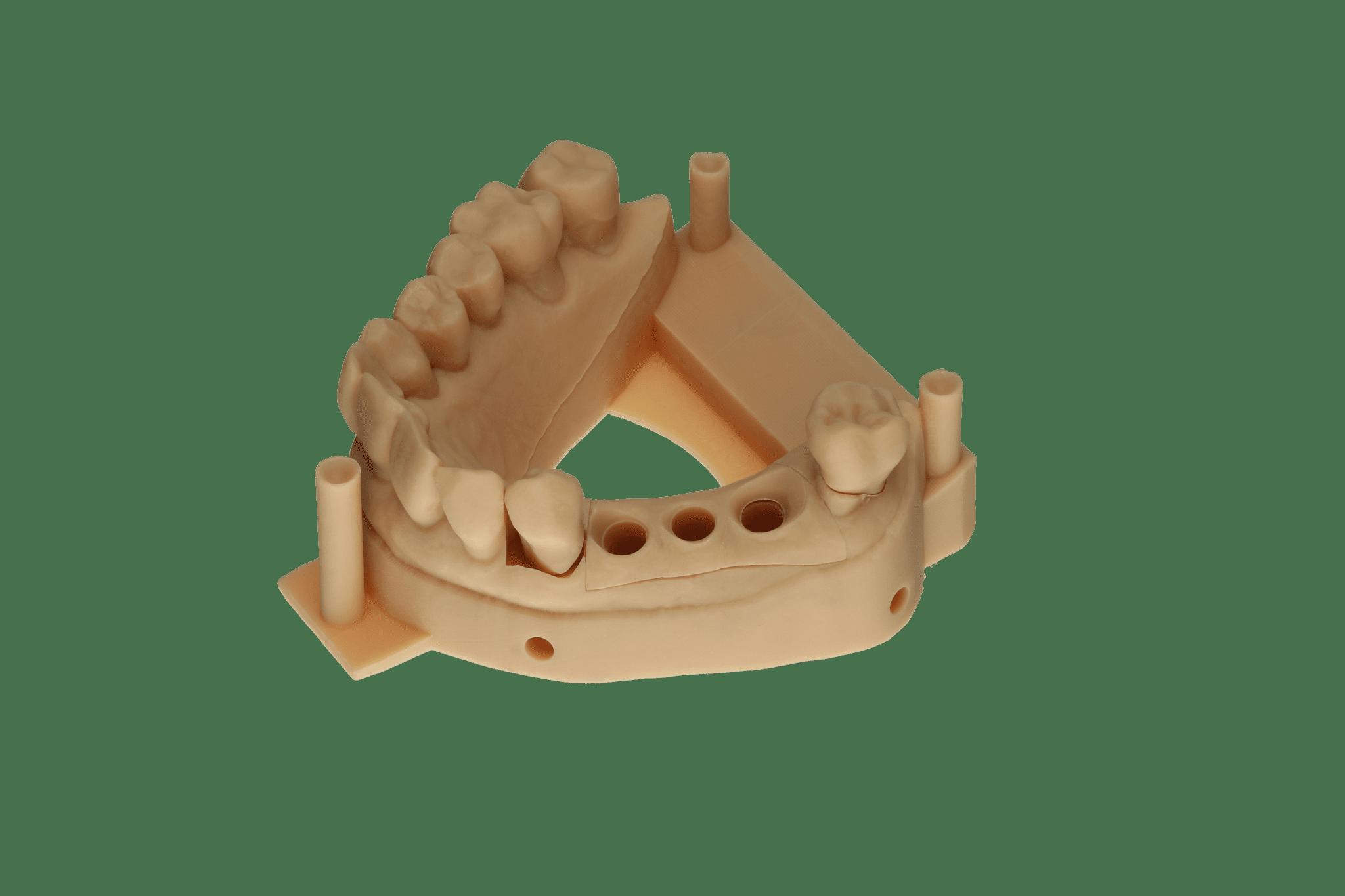 Abb. 11: Modellsituation mit entnehmbaren Stümpfen und Zahnfleischmaske