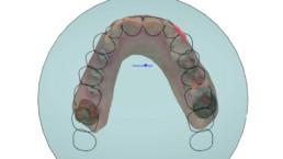 Abb. 7: Festlegung der Okklusionebene im Dental Designer