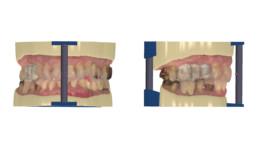 Abb. 8: Digitale Modellherstellung mit Artikulationshilfen