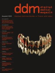 Implantieren im Frontzahnbereich ddm 3_2018