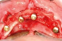 Sämtliche Implantate in situ - Okklusalansicht