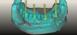 Abb 10 digitalisiertes meistermodell gematcht mit digitalisiertem Zahnersatz