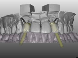 Abb 17 Gestaltung der Abutments in einer CAD-Software