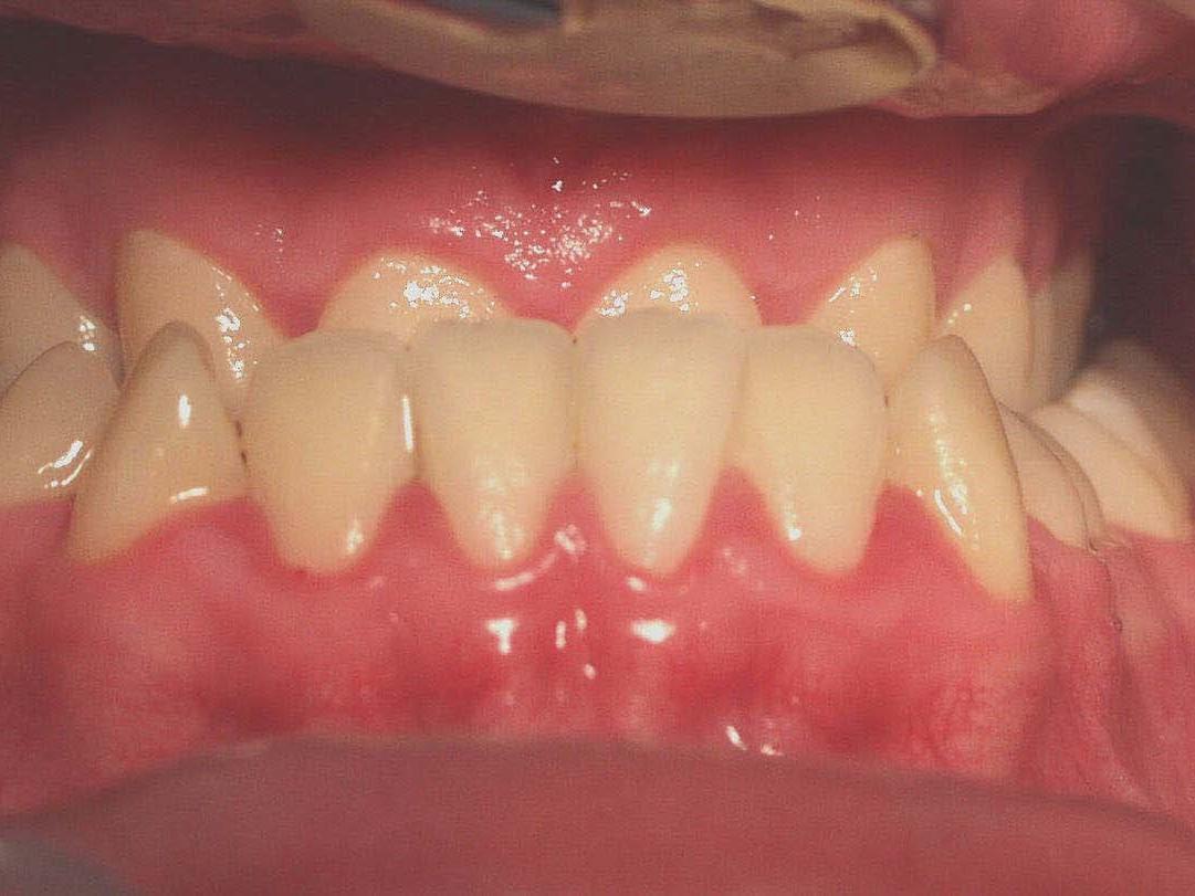 Abb 2 Ausgangssituation intraoral
