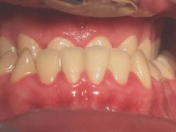 Abb 2 Ausgangssituation intraoral