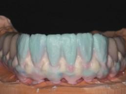 Abb 25 individuelle Verblendung der Frontzähne und der Zahnfleischanteile