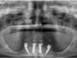 Abb 26 Postoperatives Orthopantomogramm