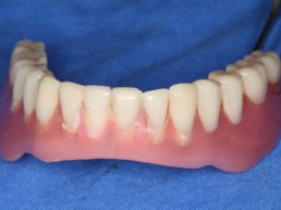 Abb 3 Unterkieferprothese von vestibulär