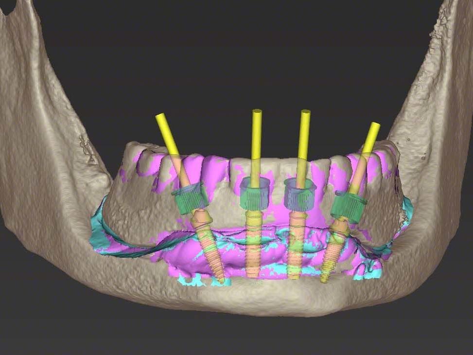 Abb 6 Visualisierung zweier NNC Variobase™-Klebeabutments regio 32 und 42 sowie der distalen Implantatpositionen 35 und 45 mit 30° verschraubten Sekundärteilen
