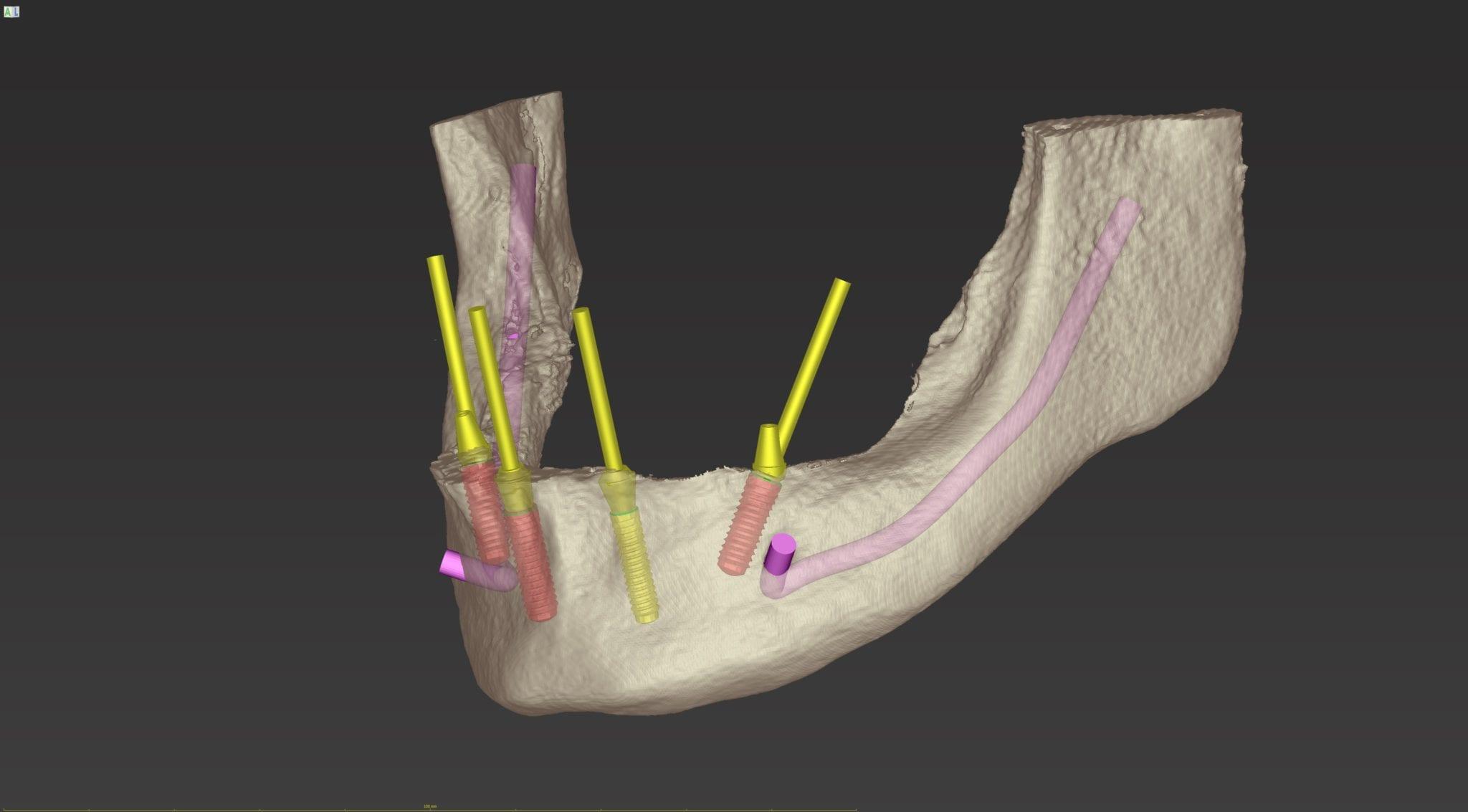 Abb. 6b: 3D-Planung ohne Schablone und Bohrhülsen - Darstellung des zu reduzierenden Knochenvolumens