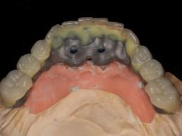 Abb. 6 Aufstellung der Unterkieferzähne