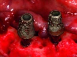 Die Implantate in regio 032 und 042 mit Ankylos Balance Basisaufbau