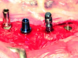 Die vier verschiedenen Implantate in situ mit bzw. ohne ihre industriell vorgegebenen Einbringhilfen