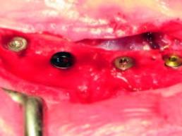 Die vier verschiedenen Implantate in situ mit ihren jeweiligen Verschlusskappen