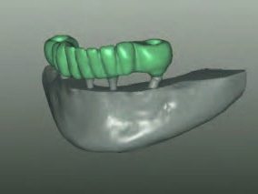 Fertiggestellte Modellation im CAD-Programm