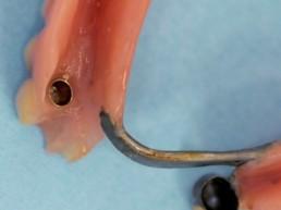 Prothese von basal mit SynCone-Kappe