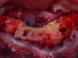 Zustand nach Glättung des Alveolarfortsatzes im Frontzahnbereich