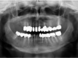 Abb. 1: Präoperatives Orthopantomogramm