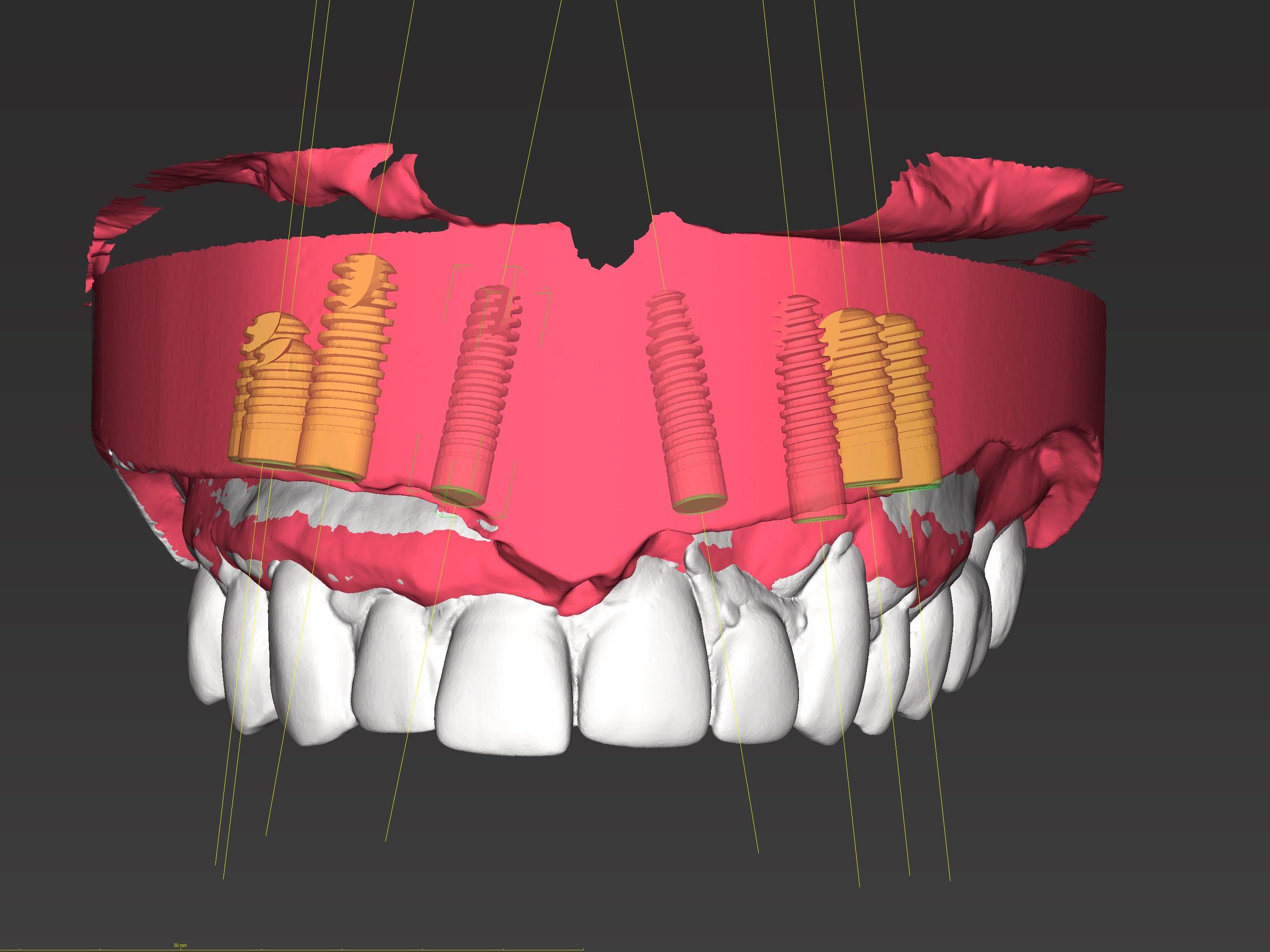 Abb. 4: Virtuelle Planung der Zahnimplantate mit gematchten Zahnersatz
