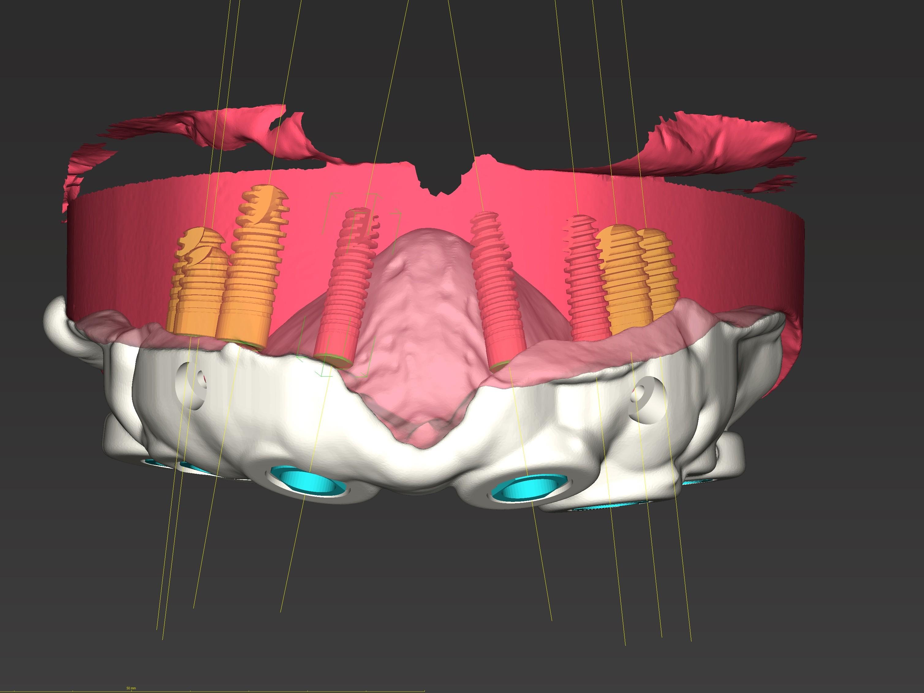 Abb. 5: Virtuelle Bohrschablone