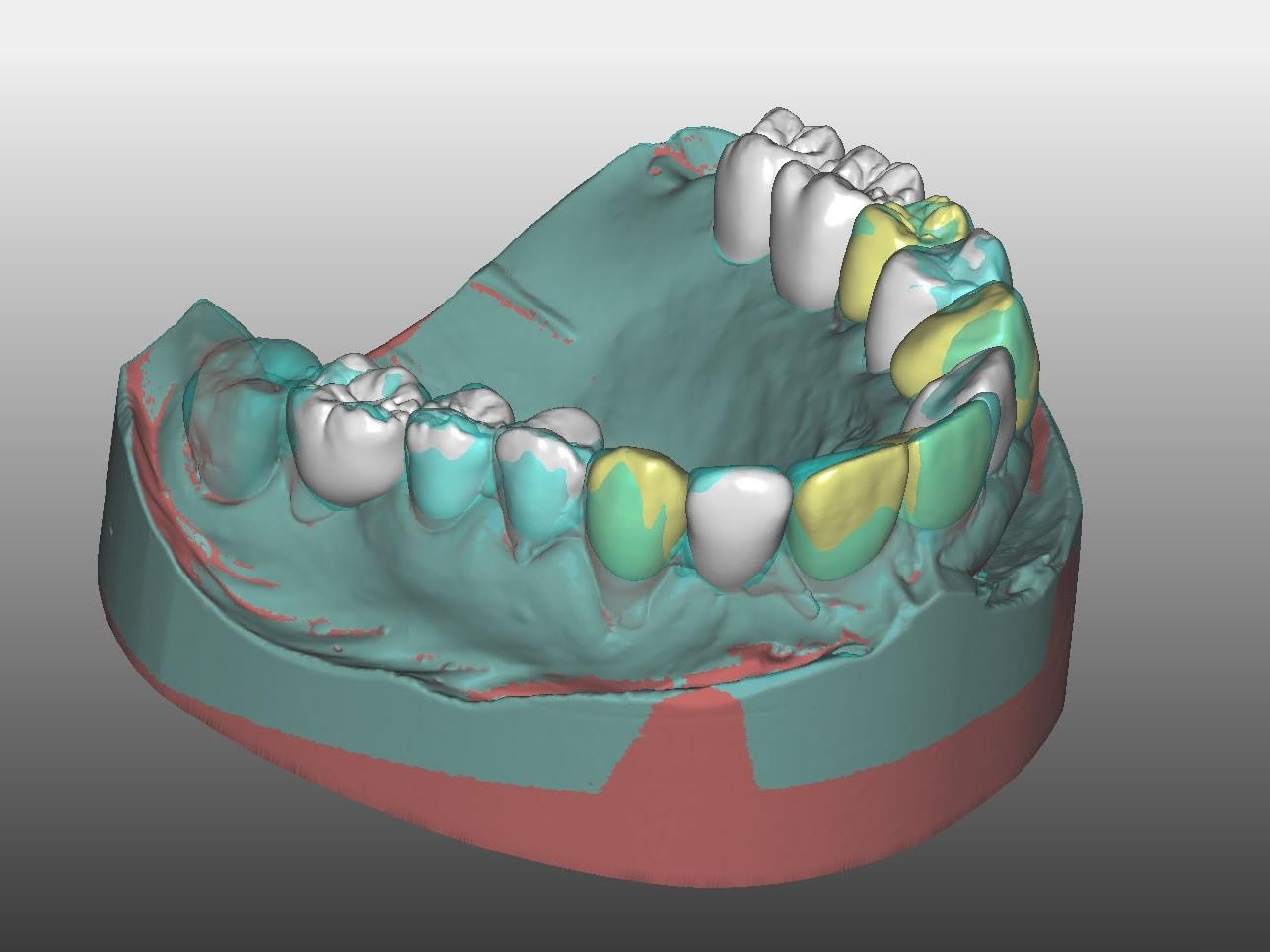 Abb. 7: Virtueller Zahnersatz und gematchte Situation