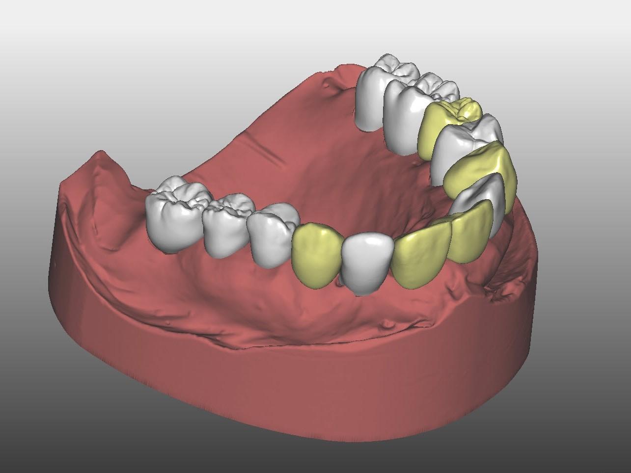 Abb. 9: Virtueller Zahnersatz