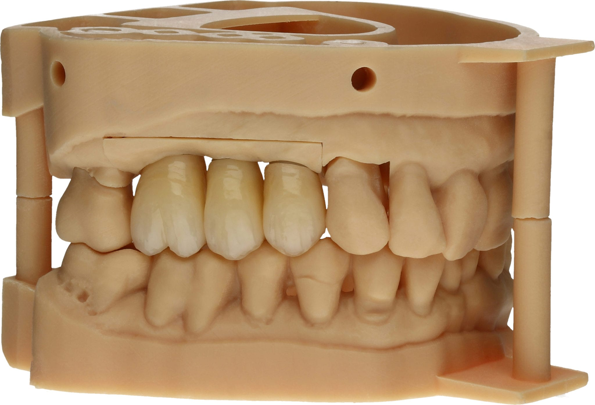 Digitales dentales Modell nach Intraoralscan
