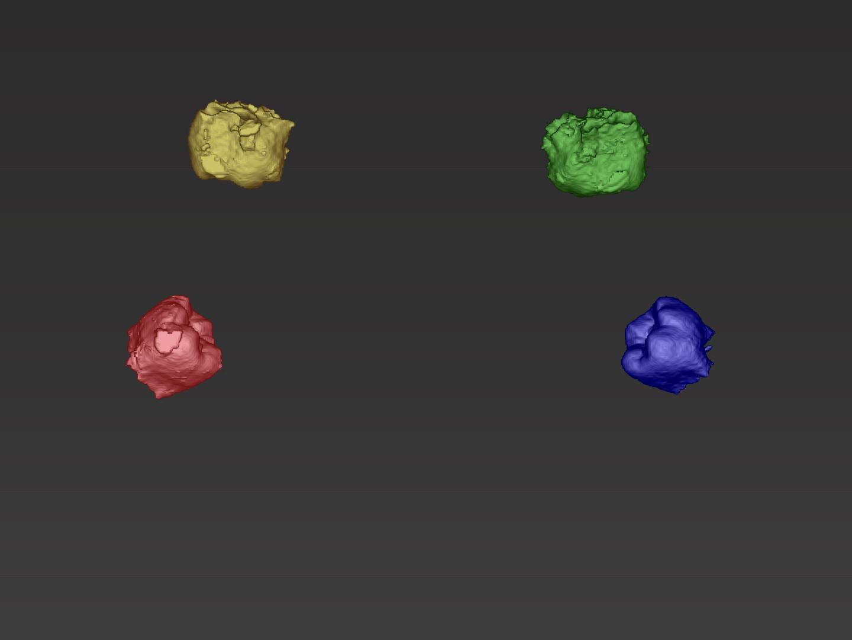 Segmentierte Zähne 18, 28, 38 und 48