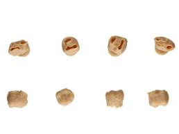 Im 3D-Druck-Verfahren generierte Zähne