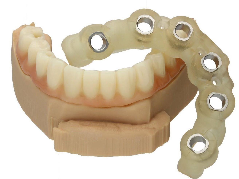 Smile in a Box Zinser Dentaltechnik Straumann BLT