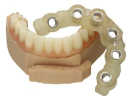 Smile in a Box Zinser Dentaltechnik Straumann BLT
