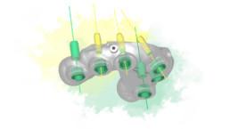 Ein ZinserGuide mit 5/6 Implantaten