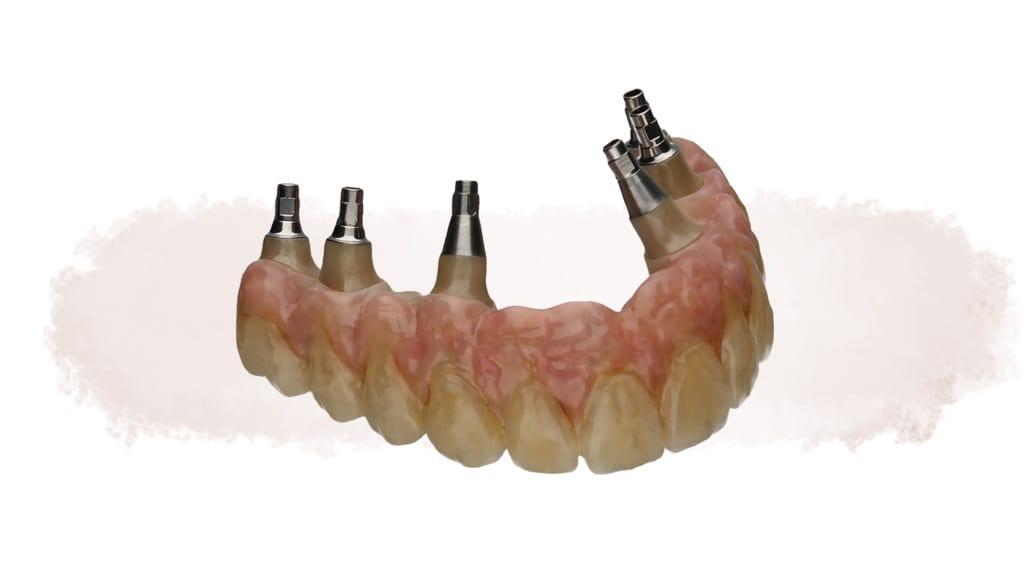 Brücke mit Zahnfleischanteil auf individuellen Abutments auf 6 Implantaten