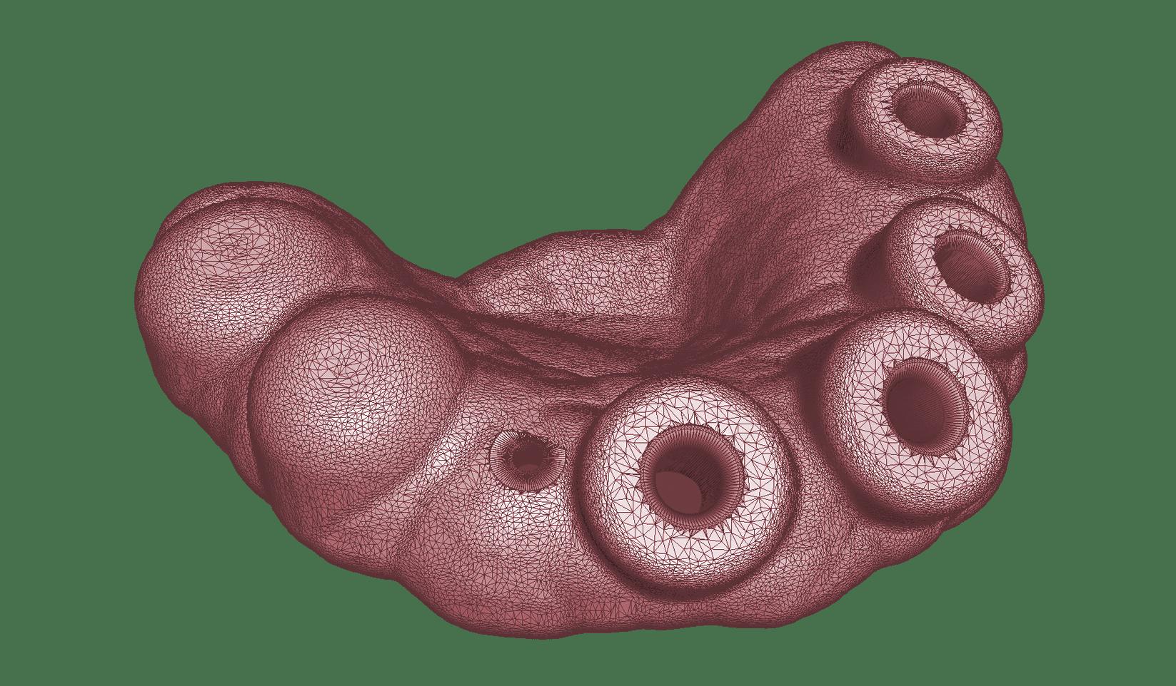 Gitternetzmodell einer ZinserGuide-Bohrschablone